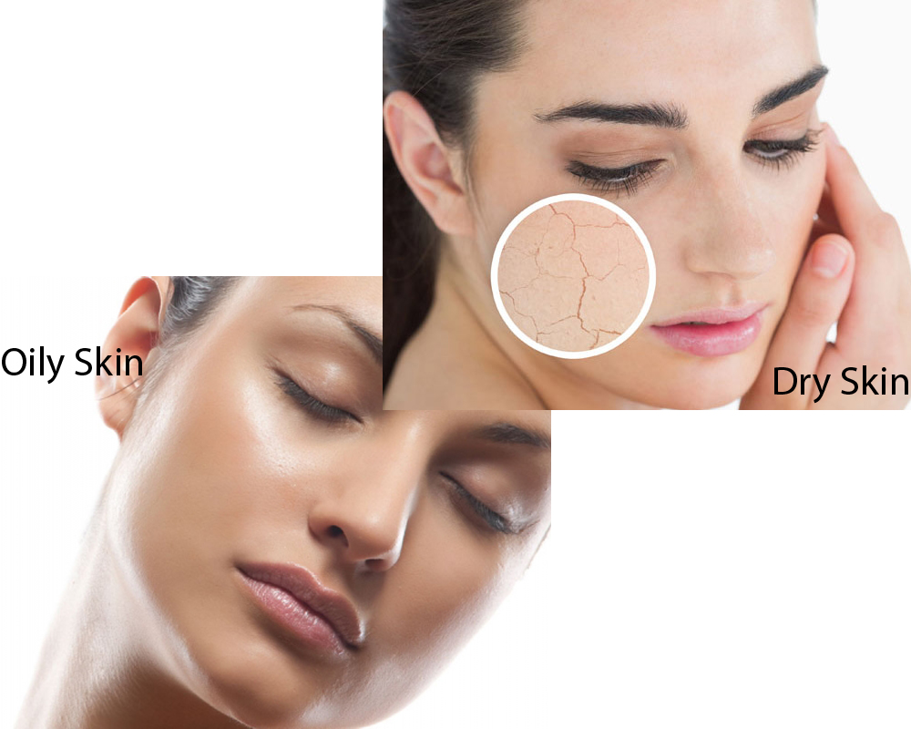 how to make oily skin dry