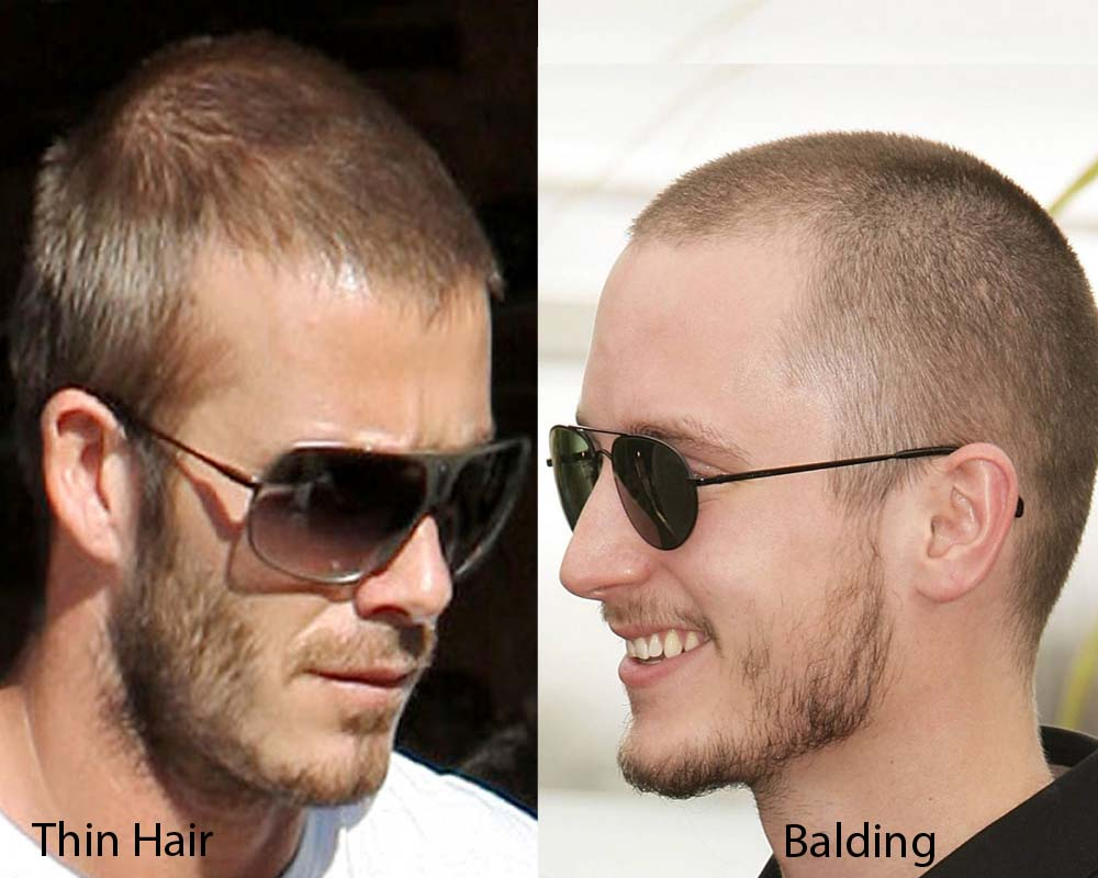 Thin Hair vs Balding 2