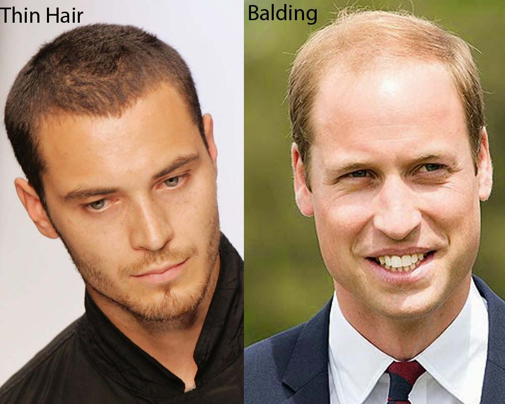 Thin Hair vs Balding 6
