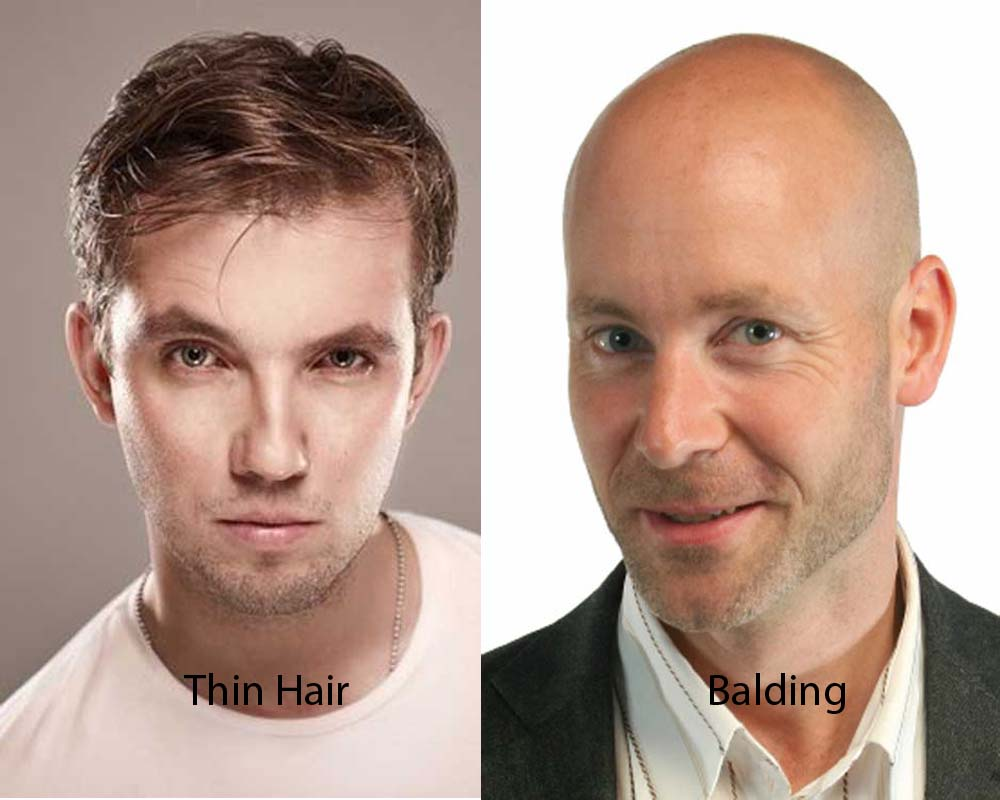 Thin Hair vs Balding 1
